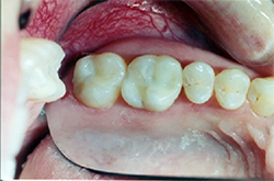 Composite Fillings after